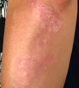 Elbow image showing week 4.