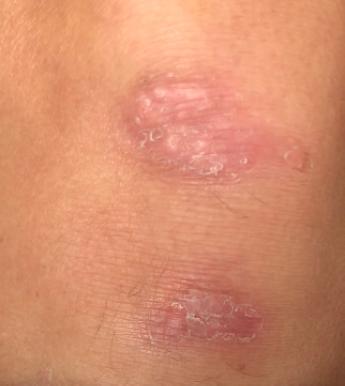 Knee image showing week 4.